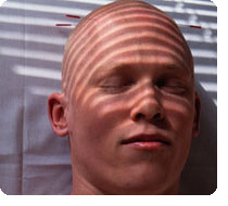 Alopecia Areata In Men